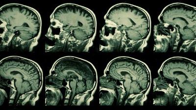 MRI--X-ray--brain-jpg_20160422103410-159532