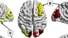 autism brain scans_1487197109177.jpg