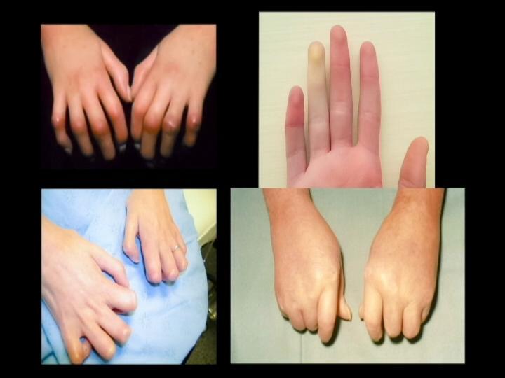 sclerosis _1493066105776.jpg
